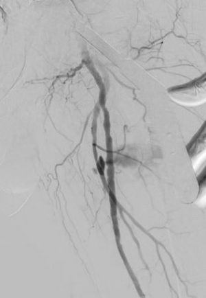 Deep Femoral artery bleeding with endograft treatment EVTM
